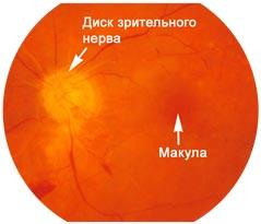 Непроходимость ветви центральной артерии сетчатки
