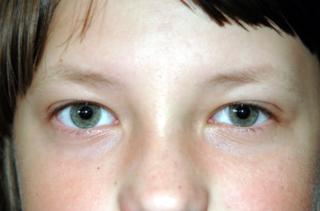 Лазерная коррекция нарушений зрения у детей